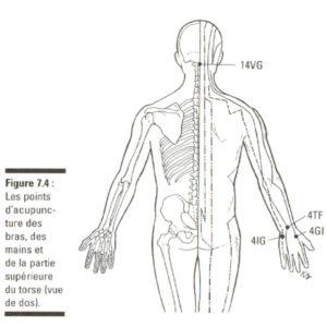 névralgie cervico brachiale- acupuncture- bayonne