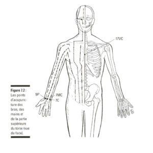 névralgie cervico brachiale- shiatsu-bayonne